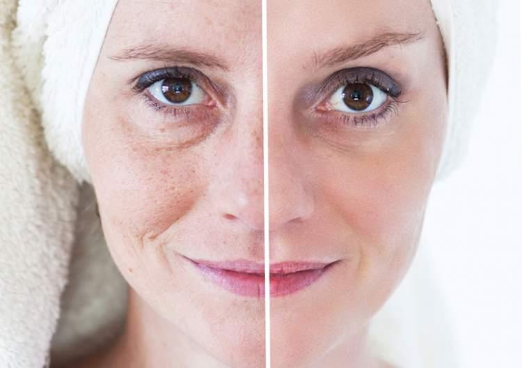 Tratamentos para tirar manchas na pele do rosto