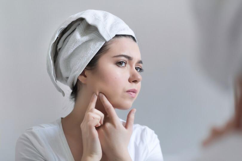 Acne na mulher adulta: por que acontece e como tratar?
