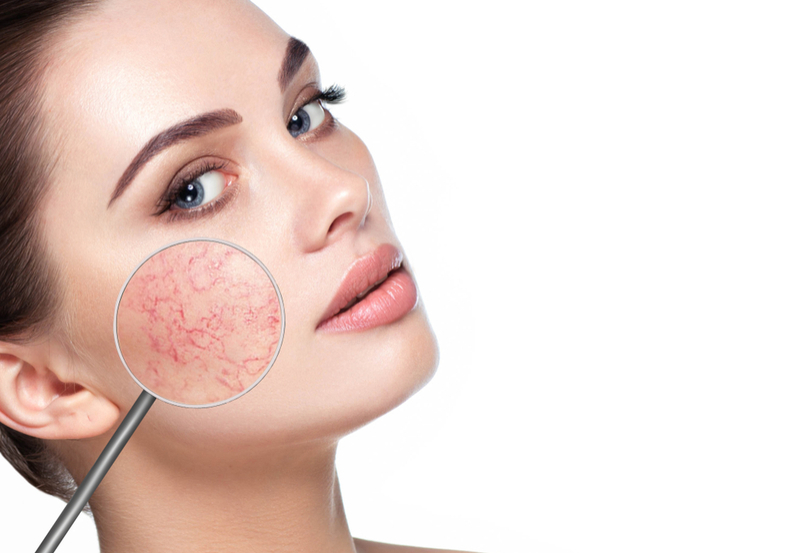 O que é rosácea? Descubra tipos, causas, sintomas e tratamentos