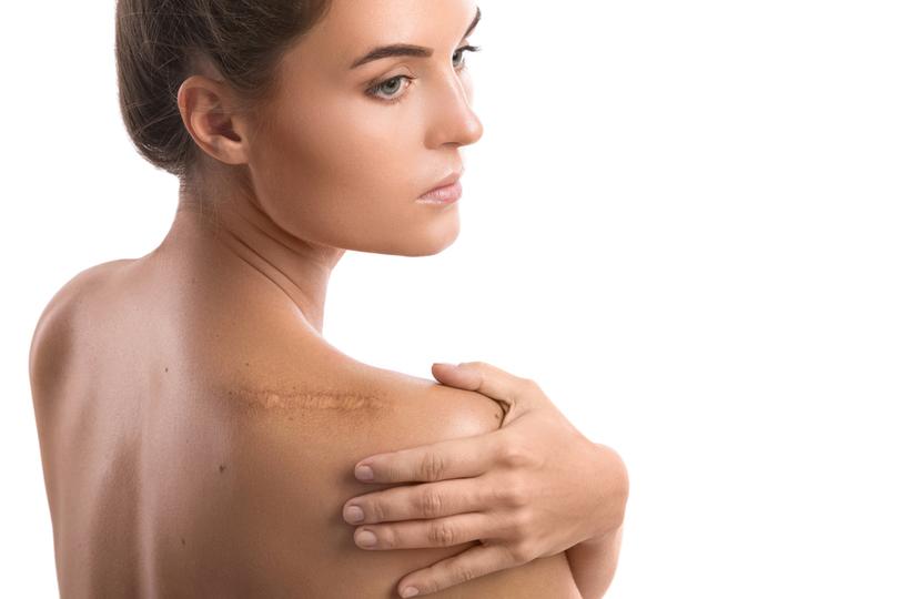 Tratamento para cicatrizes sem cirurgia plástica